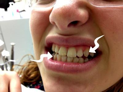 invisalign teen clear braces alternative